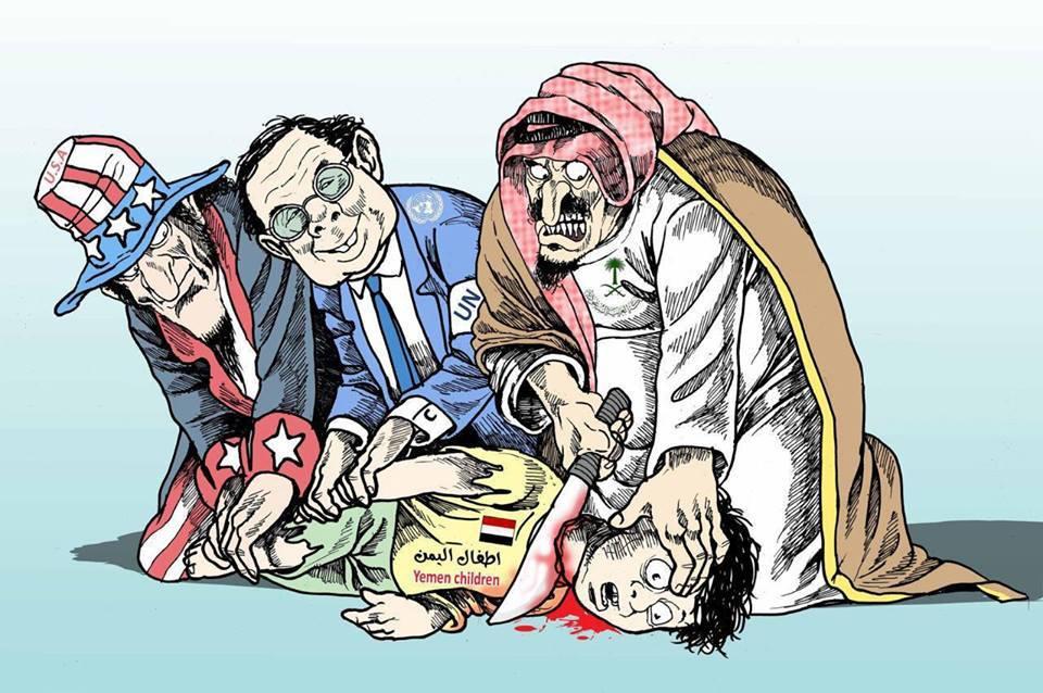 Image result for اطفال اليمن